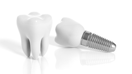 dental implant vancouver
